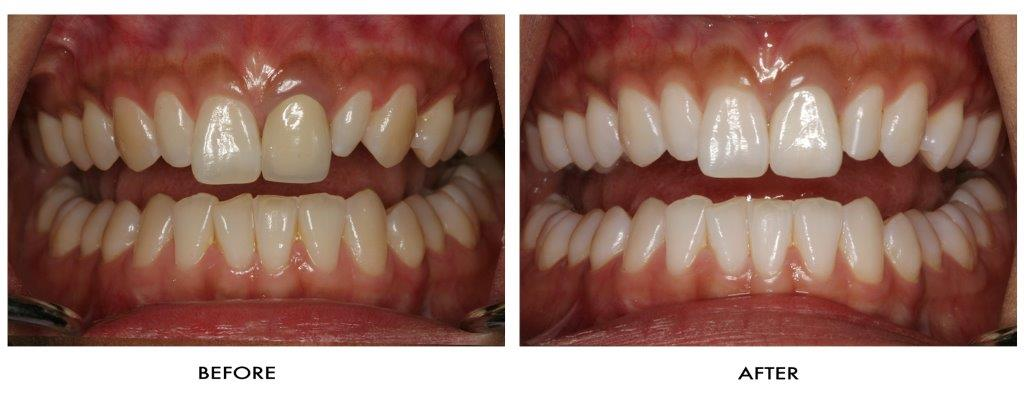 Home Teeth Whitening.  Photo of teeth whitening before and after treatment
