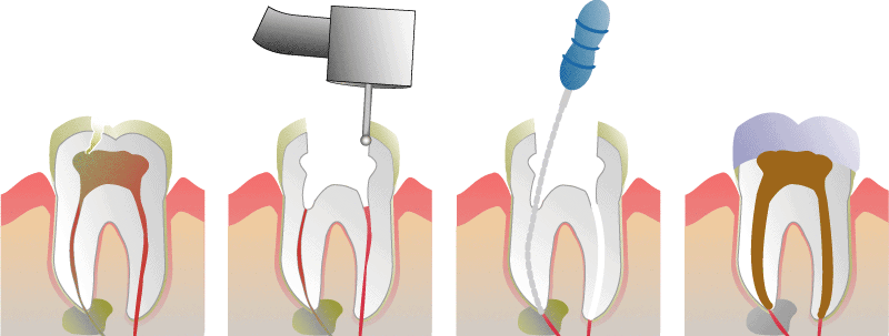 Diagram of how root canal treatment works.  Hewett's Dental Brighouse