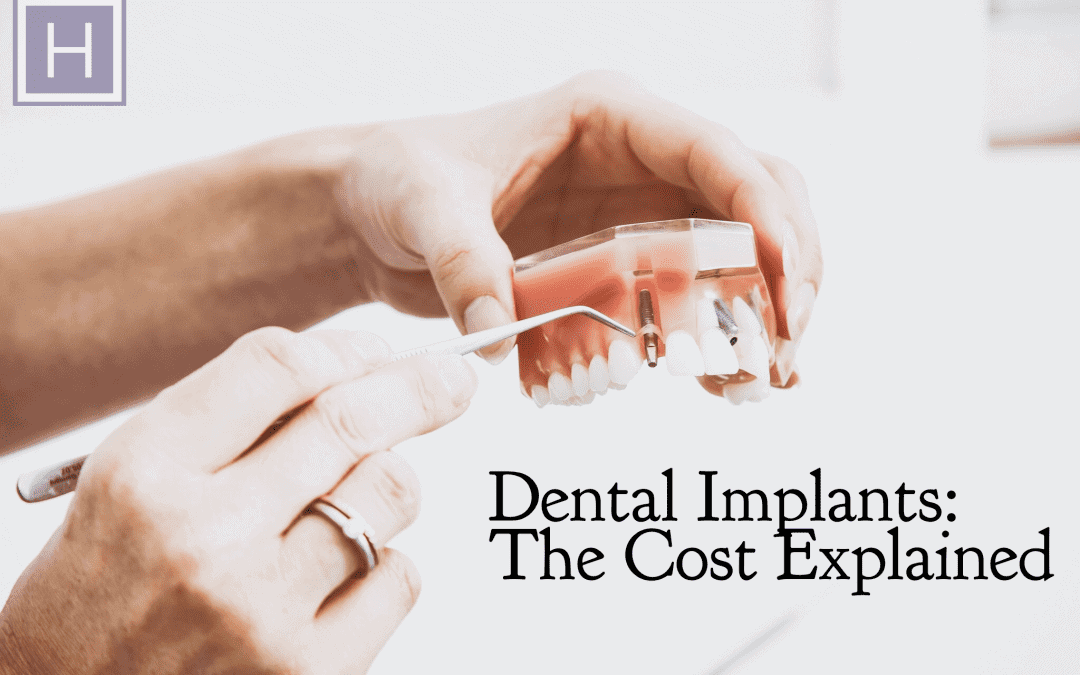 Dental Implants: The Cost Explained