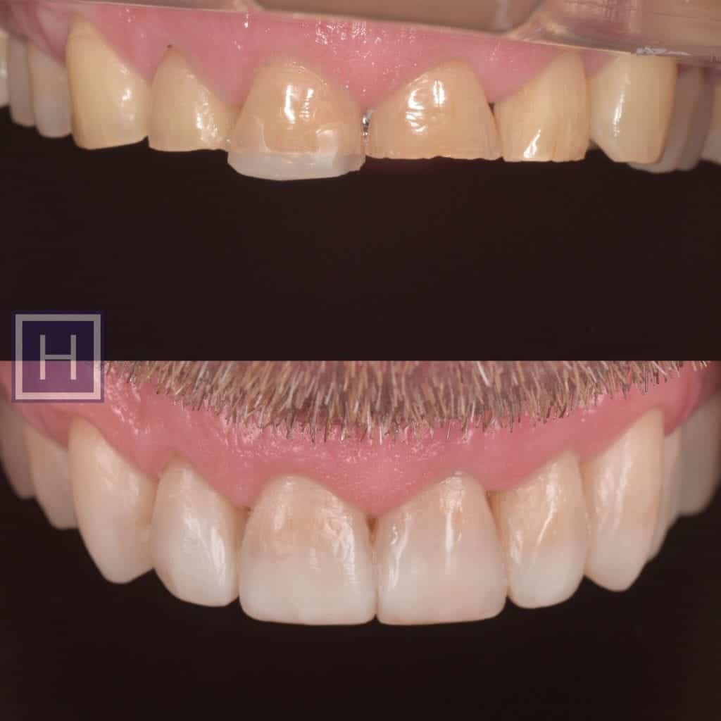 tooth veneers - before and after