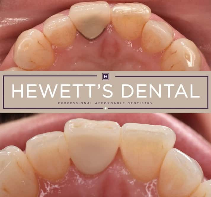 anterior before and after crown