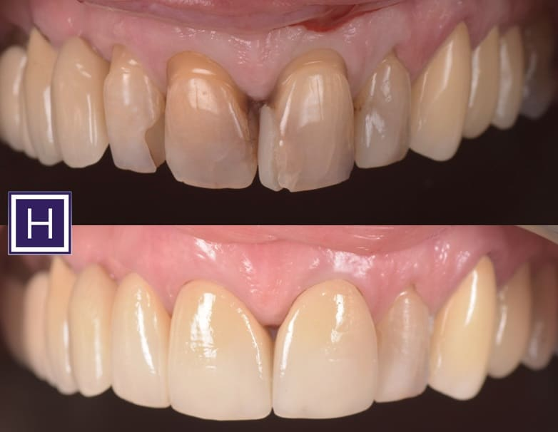 before and after crown teeth